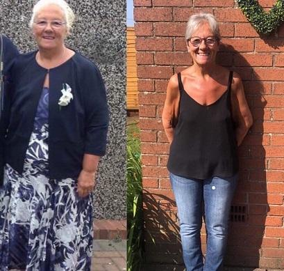 Ann before and after her time at Slimming World.